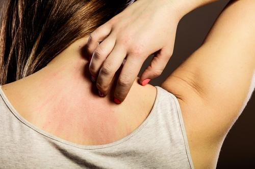 skin-allergy img