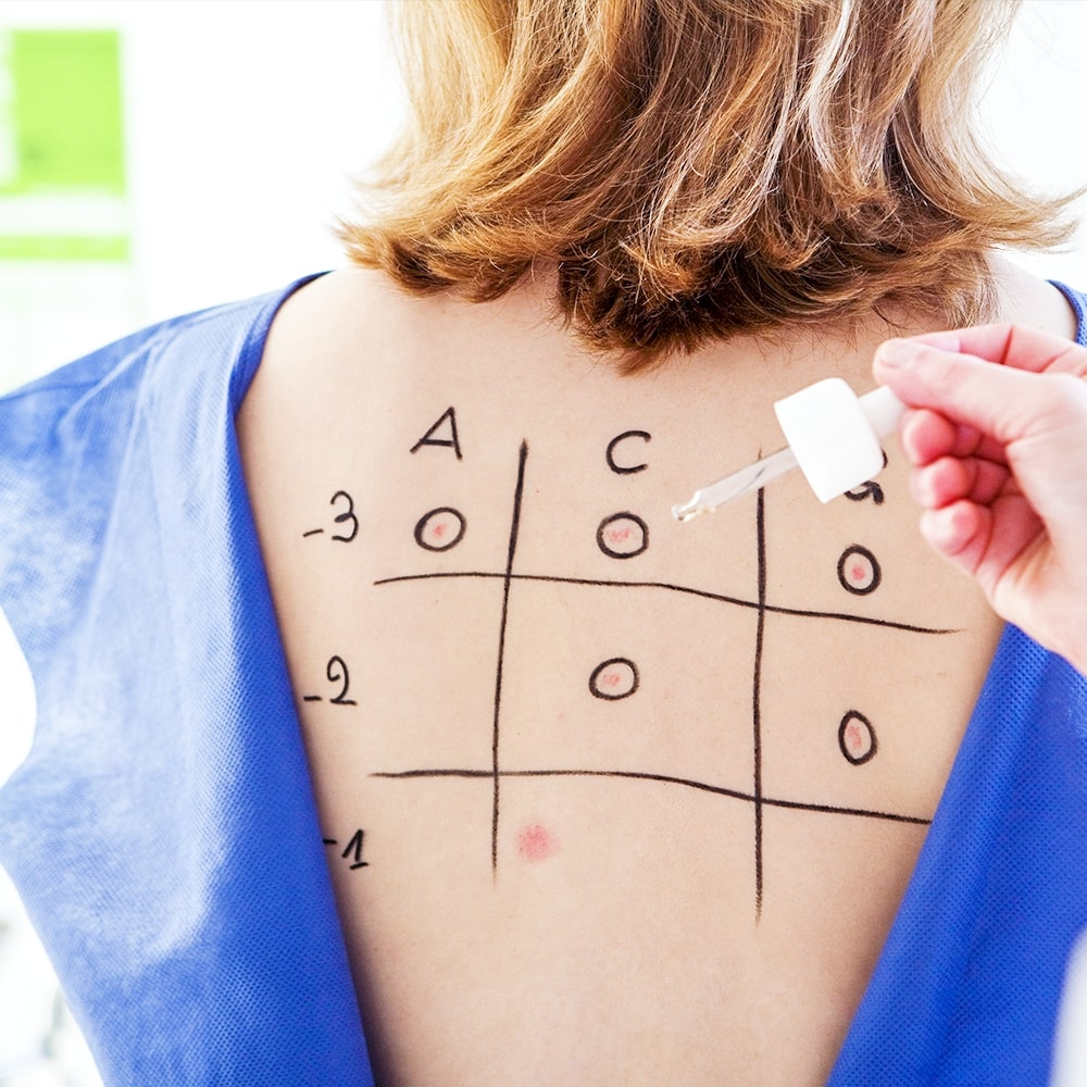Skin test vs. blood test - McGovern Asthma and Allergies Clinic